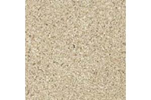 W. Sand Bottone 7,2x7,2 /В. Сенд Вставка
