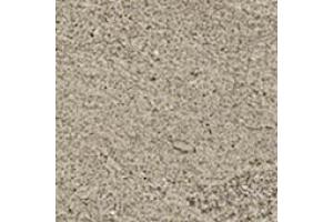 W. Silver Grey Bottone Lap/В. Сильвер Грей Вставка Лаппато